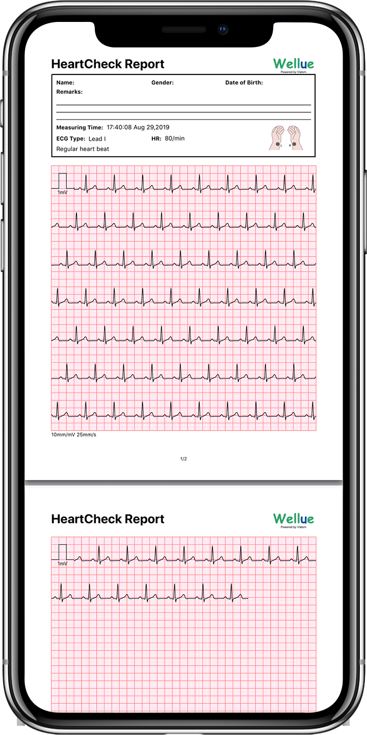 Wellue Pulsebit Ex EKG Monitor App EKG PDF report share