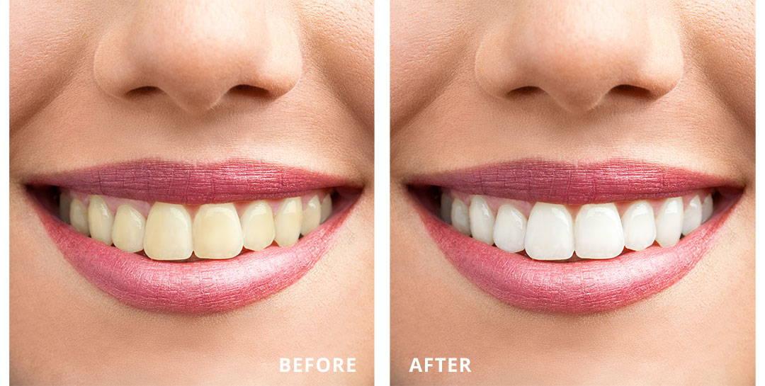 Ilustrasi gigi putih cemerlang vs gigi kuning