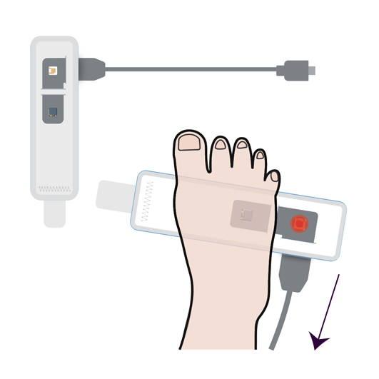 Wellue BabyO2 Baby Oxygen Monitor da indossare sul piede del bambino, comodo e sicuro