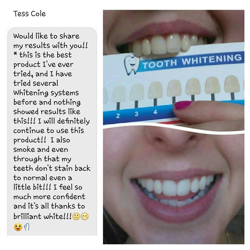 Brilliant White Advanced Teeth Whitening