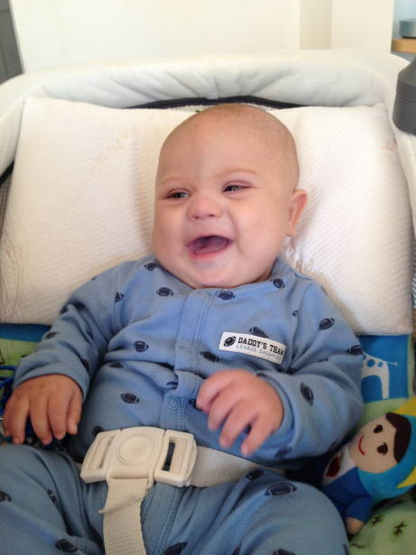 Baby with Down Syndrome Smiling