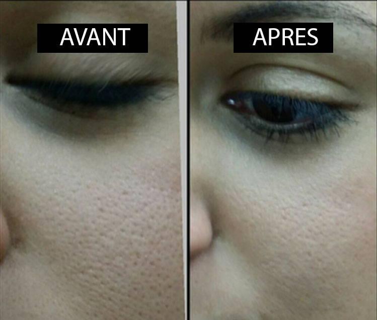avant-apres-eponge-konjac-effet-peau-naturel-resserre-pores-lisse