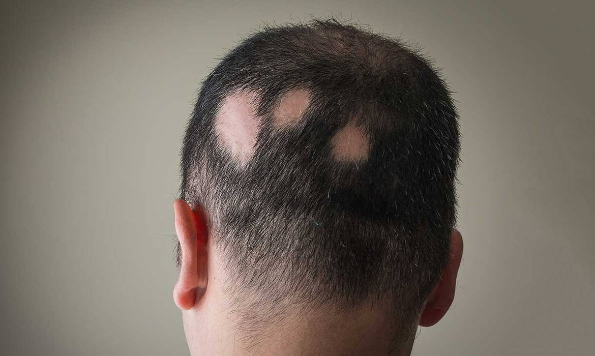 Image of man showing patches of hair missing as he suffers from alopecia areata
