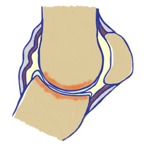 drawing fetlock joint horse arthritis stage 4