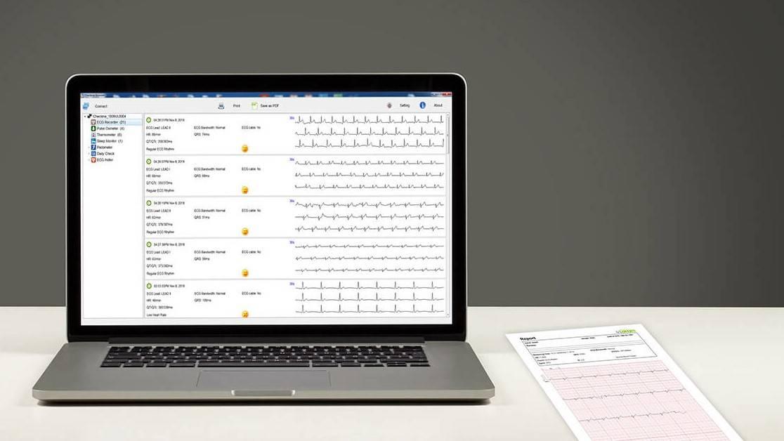 جهاز مراقبة العلامات الحيوية wellue checkme pro مع برنامج الكمبيوتر
