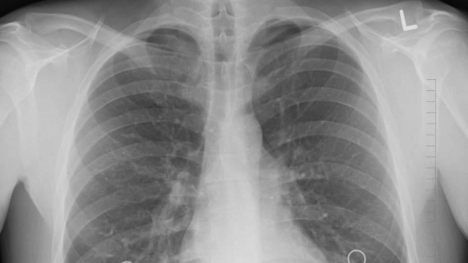 Des poumons vus au scanner