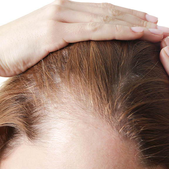 close up of woman's hairline