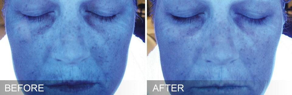 HydraFacial Results - improvement in hydration over 2 days - Thai-Me Spa in Hot Springs AR