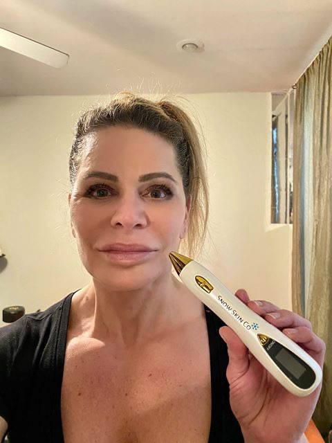 Fibroblast Plasma pen, sebaceous hyperplasia remover, skin tightening, buy plasma pen