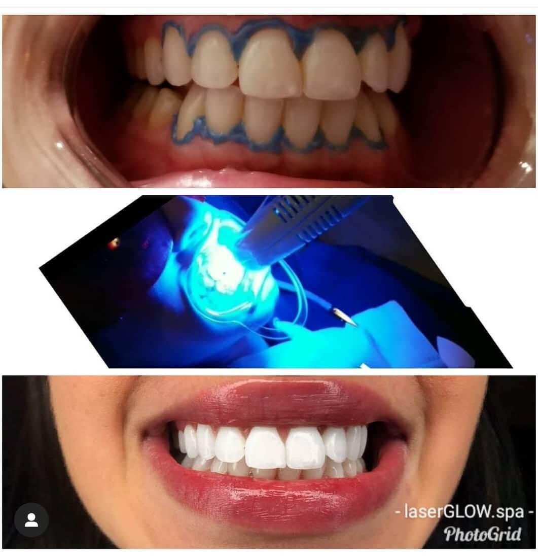 laser glow in office teeth whitening treatment