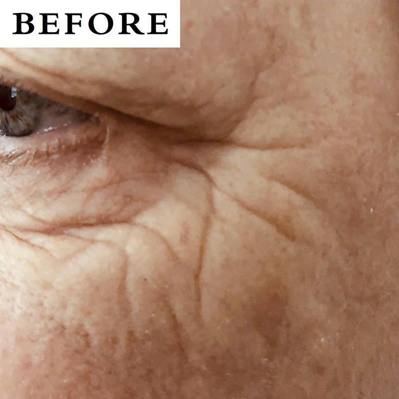eye wrinkles before