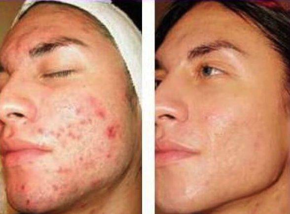 Can a Derma Roller Help Acne Scars? – Derma Roller Store