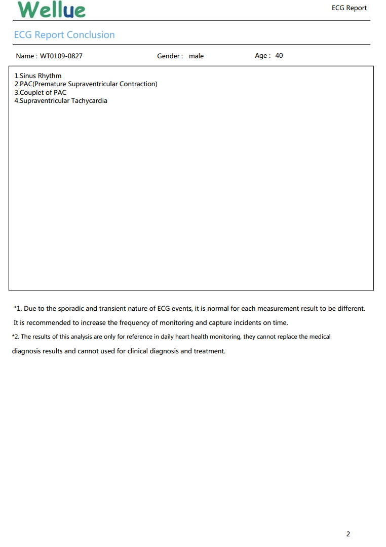 ECG詳細レポート、洞調律、PAC、心房性期外収縮、PACの連句、上室性頻脈