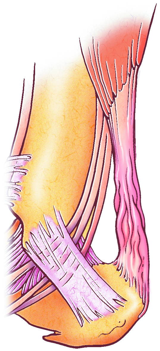 ACHILLES TENDINITIS ILLUSTRATION