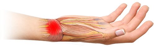 MODERATE & SEVERE SPRAINS ILLUSTRATION