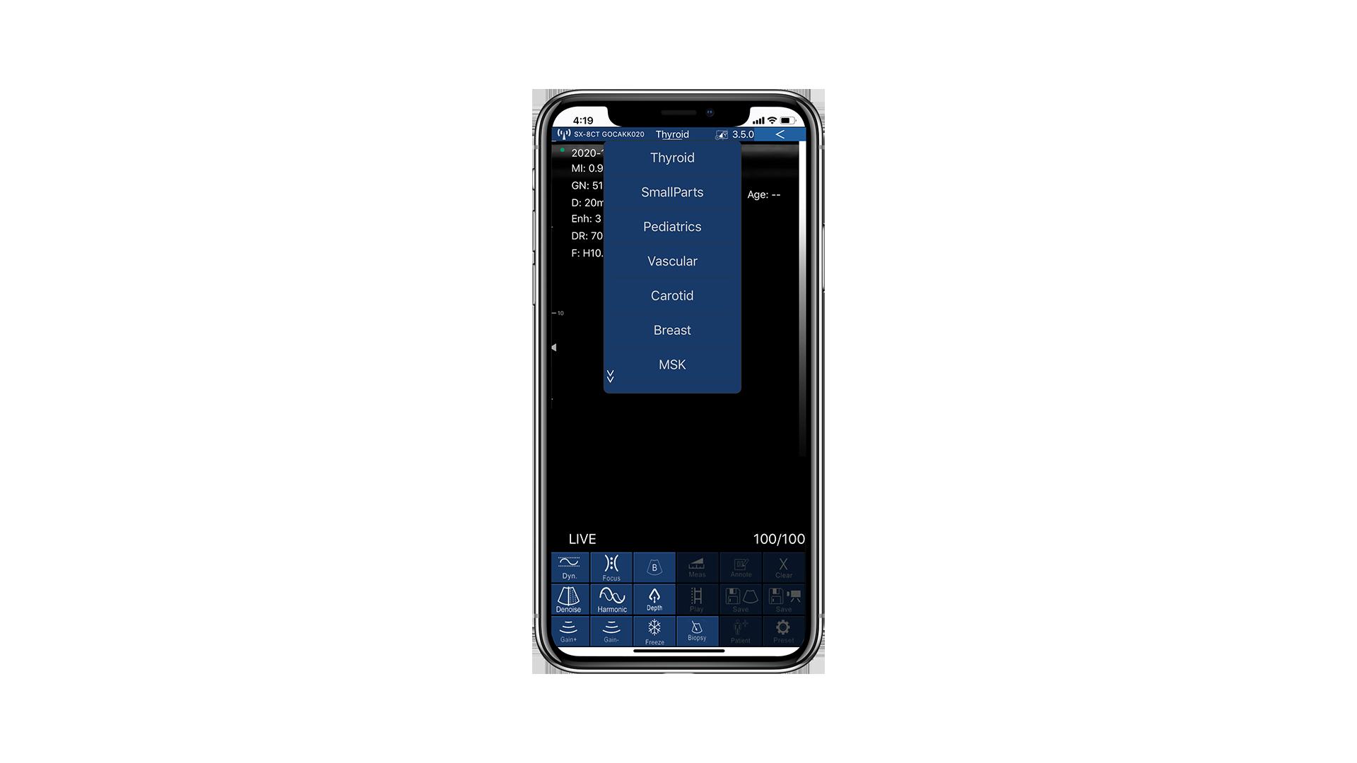 Hauptmenü der App zu Beginn des Scannens.