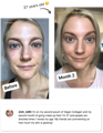 Collagen before and after