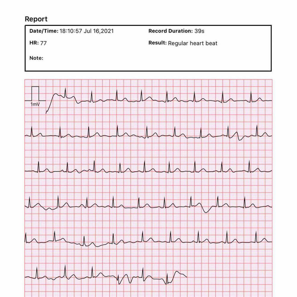 view the ECG waveform and get the ECG report