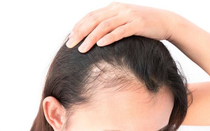 Lavender oil is a natural, herbal way to prevent shedding hair and hair breakage.