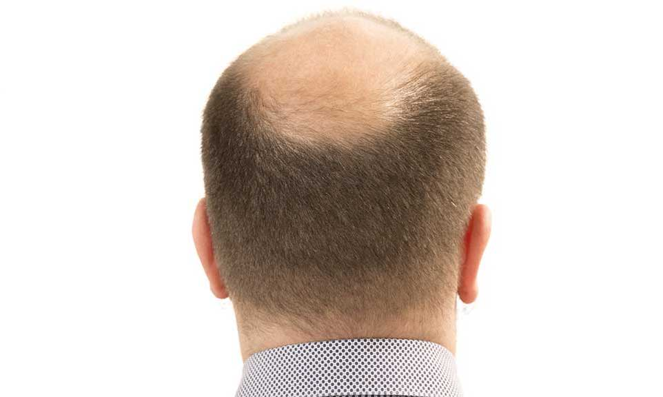 back of a man's balding head