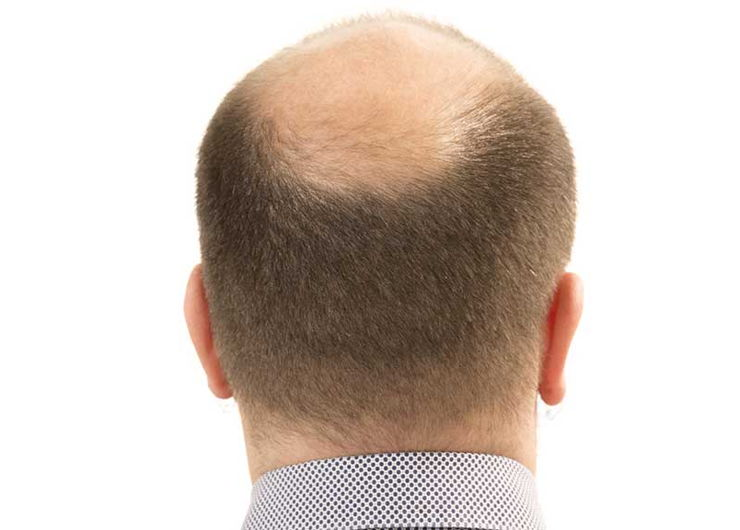 back of a man's balding head