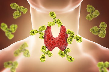 Thyroid Autoimmunity – What Are Healthy Levels for Thyroid Antibodies -
