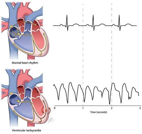 عدم انتظام دقات القلب البطيني