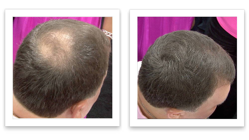 How to Promote Hairgrowth and Prevent Hairloss Using DHT