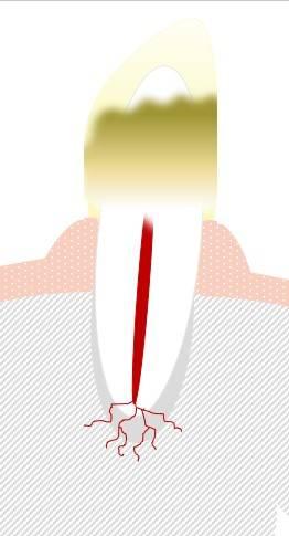 Abbildung: Plaques und Zahnstein