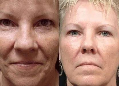 flawless skin with dr pen m8 microneedling pen