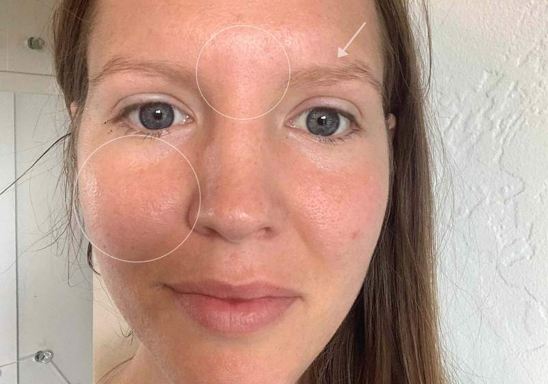 marine-collagen-before-after-pictures-skin