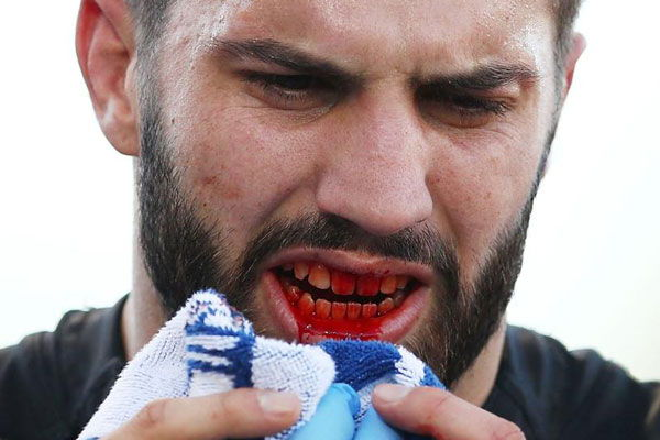 Injury from using a boil and bite mouthguard