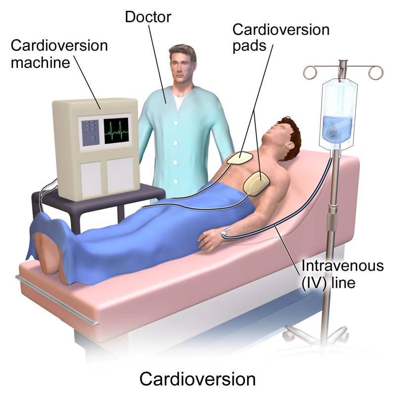 تقويم نظم القلب الكهربائي