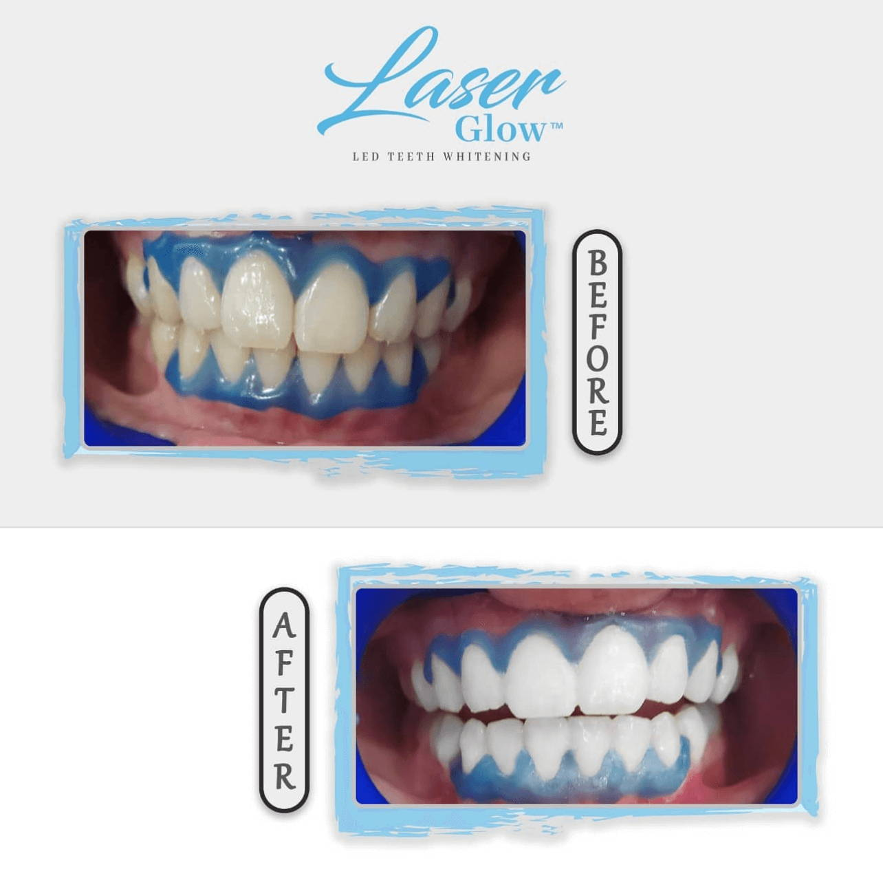 laserglow spa teeth whitening kit