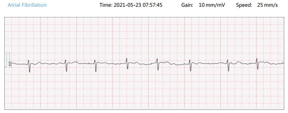 異常な心電図、異常な心電図、異常な心電図ストリップ、異常な心電図ストリップ、、