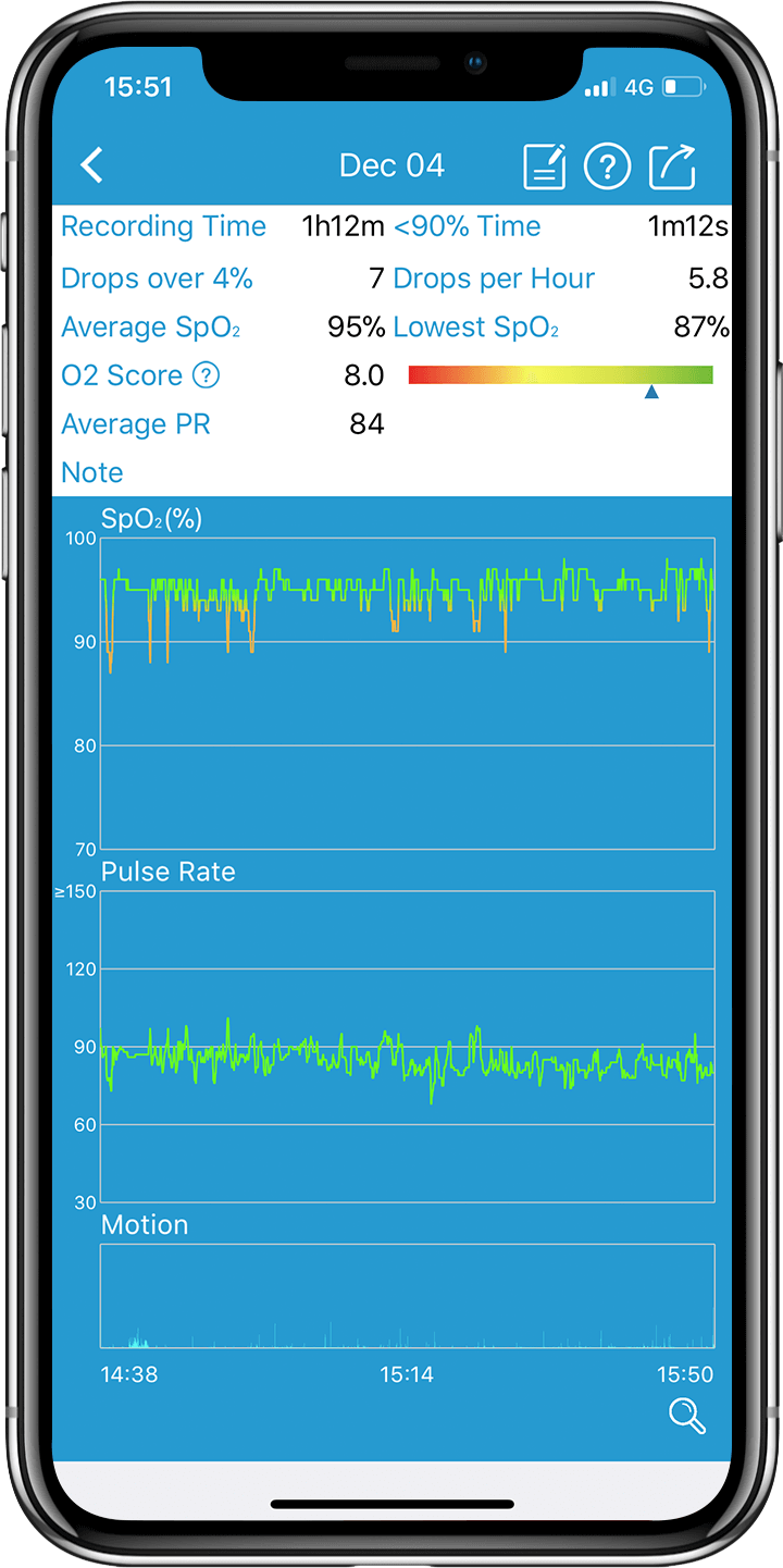 The history trend chart of SpO2, pulse rate, motion on app of Wellue Checkme O2 Max oxygen monitor.