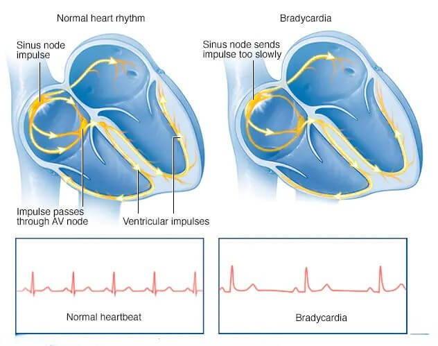 بطء القلب مقابل إيقاع القلب الطبيعي
