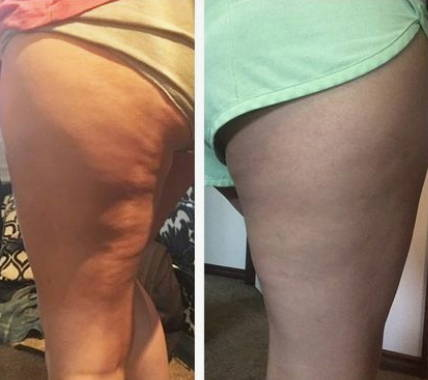 how to get rid of cellulite on legs, fat burning machine, cellulite removal
