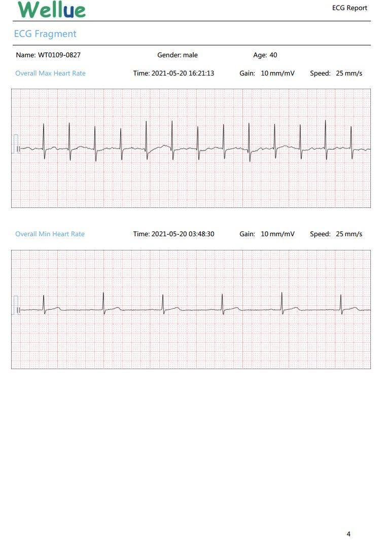心電図ストリップ、心電図ストリップ、心電図フラグメント、心電図フラグメント