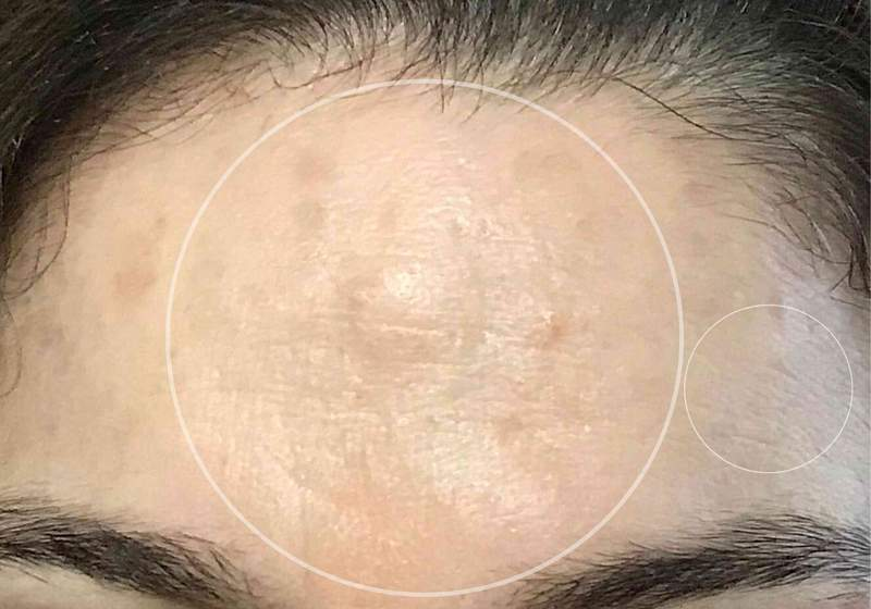 marine-collagen-before-after-pictures-wrinkles
