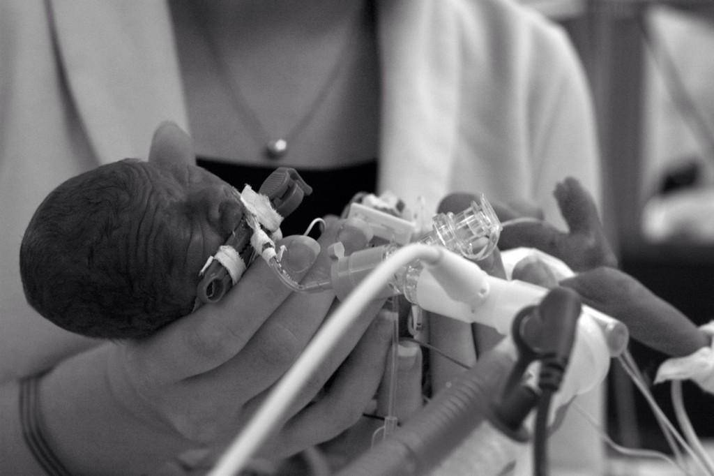 micropreemie baby held by mother in NICU, intubated, black and white