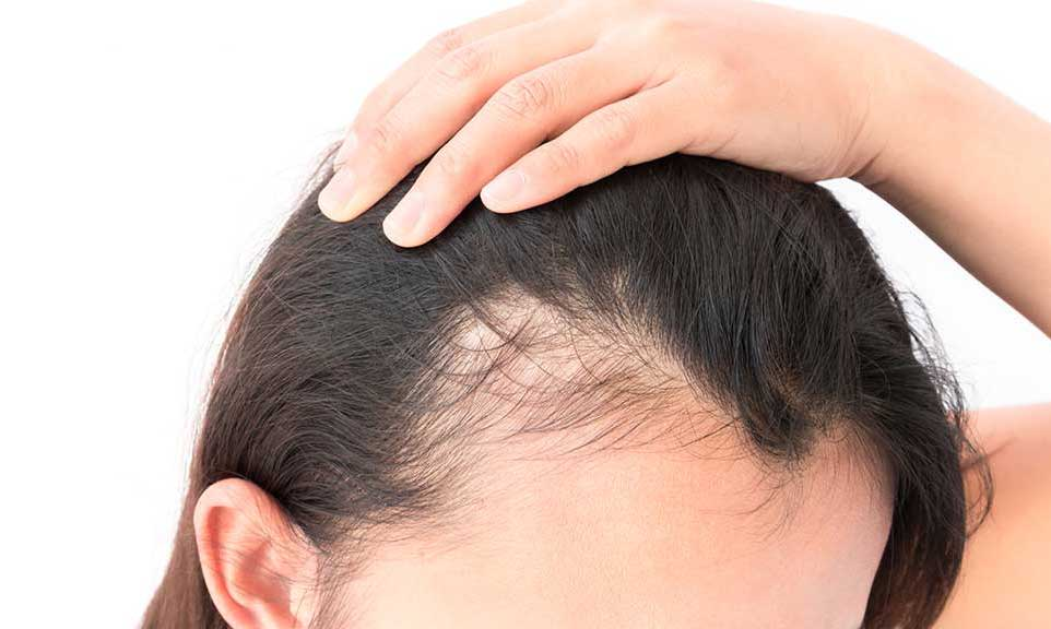woman showing hair loss on scalp