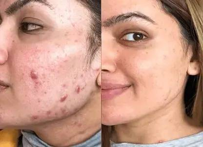 microneedling pen dr pen work perfectly