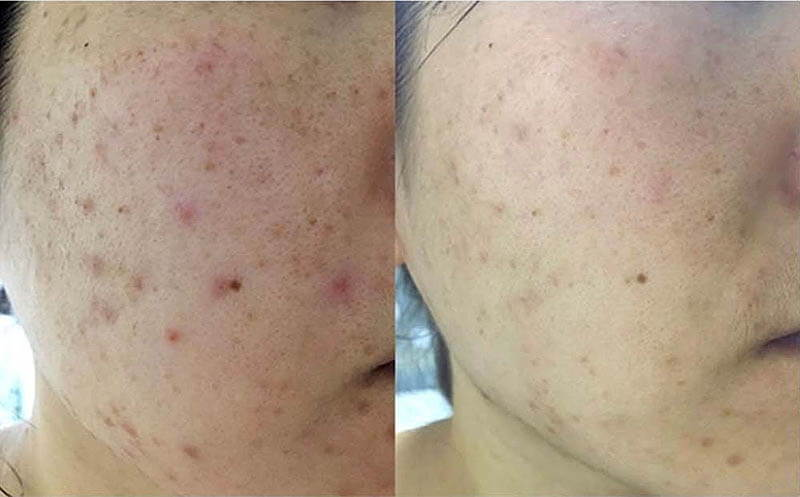 Skin care consultation result Acne before & after