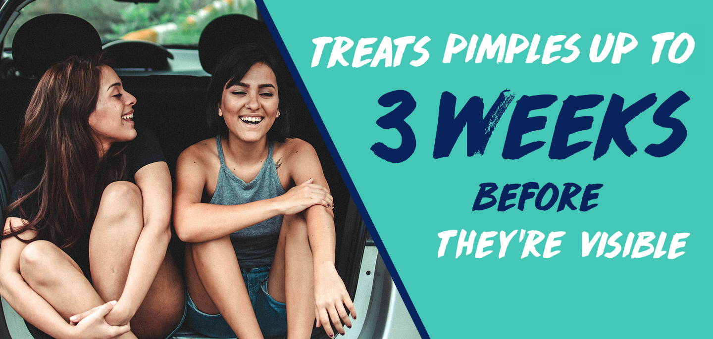 Treats pimples 3 weeks before they're visible