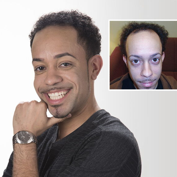 Lavon's before and after photo