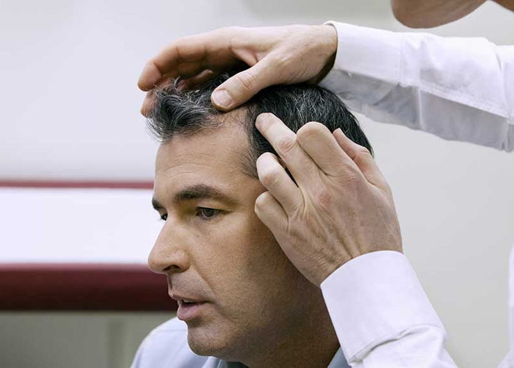 doctor checking a male patient for scalp psoriasis