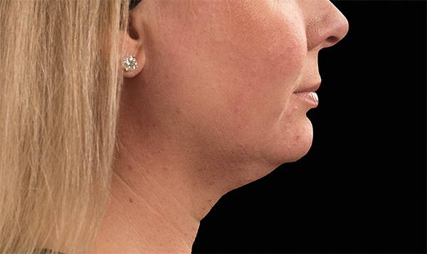 Female | Double Chin | CoolMini™ Before
