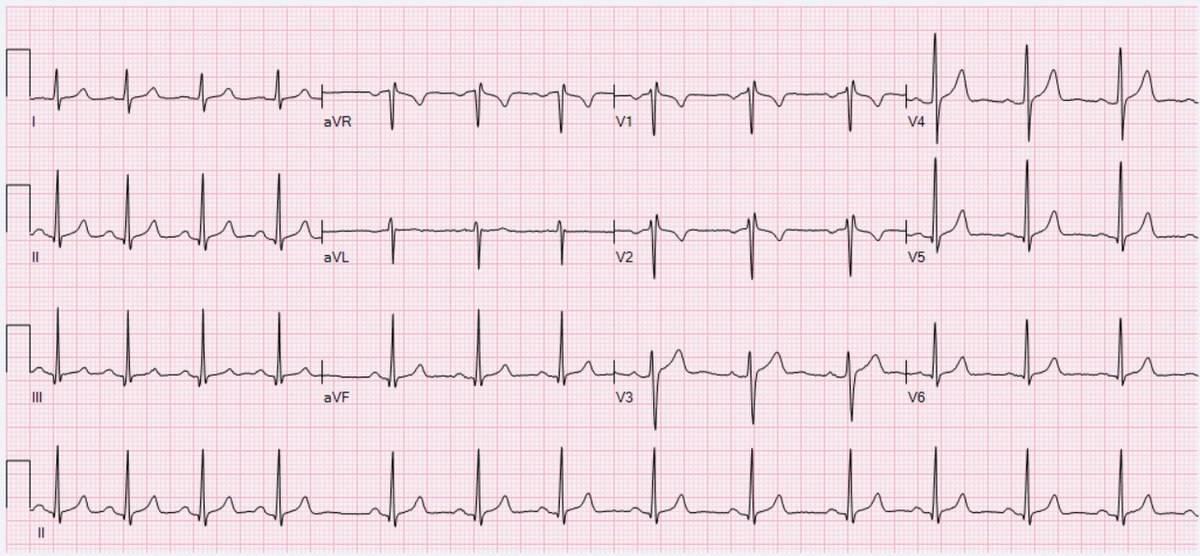 Arythmie sinusale, forme d'onde ECG de l'arythmie sinusale