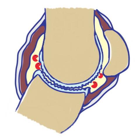 drawing fetlock joint horse arthritis stge 2